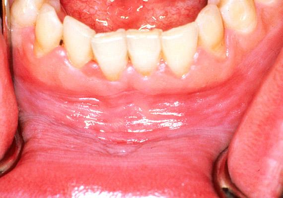 szájnyálkahártya rák