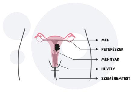 A HPV és a méhnyakrák   Rózsakert Medical Center