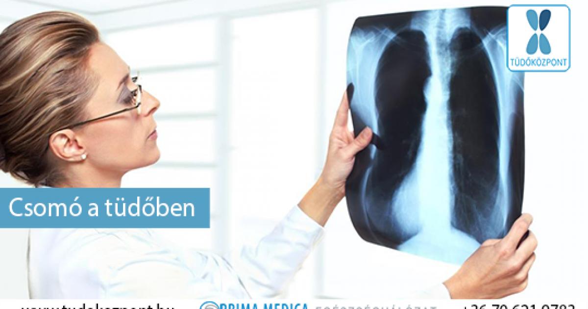 jóindulatú tüdőrák külső papillómák és nemi szemölcsök esetén