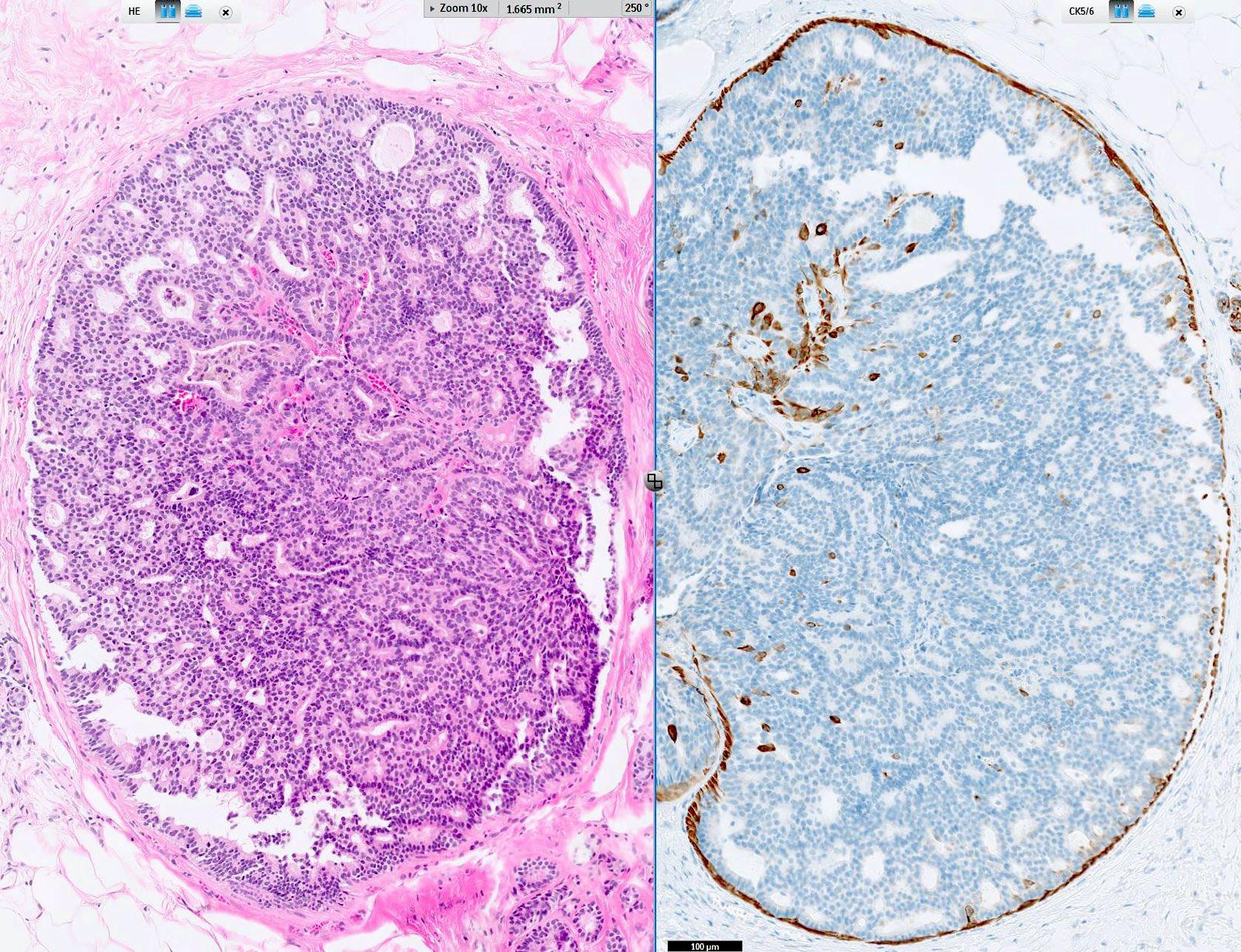 papilloma fibrom condilom helmintikus terápia bizonyítékai