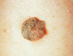 szemölcsök papilloma condyloma fibroma