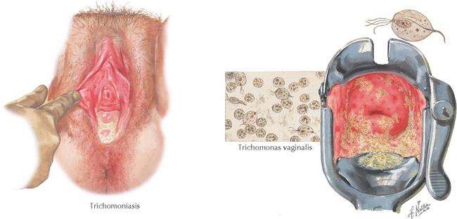 férgek hogyan kell felkészülni a hpv rákot okoz a nőknél